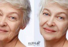 get-rid-of-facial-wrinkles (9)